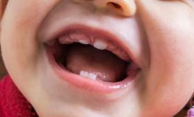 Pessoas com síndrome de Down podem ter mais problemas bucais